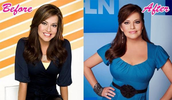 Robin Meade's plastic surgery before and after